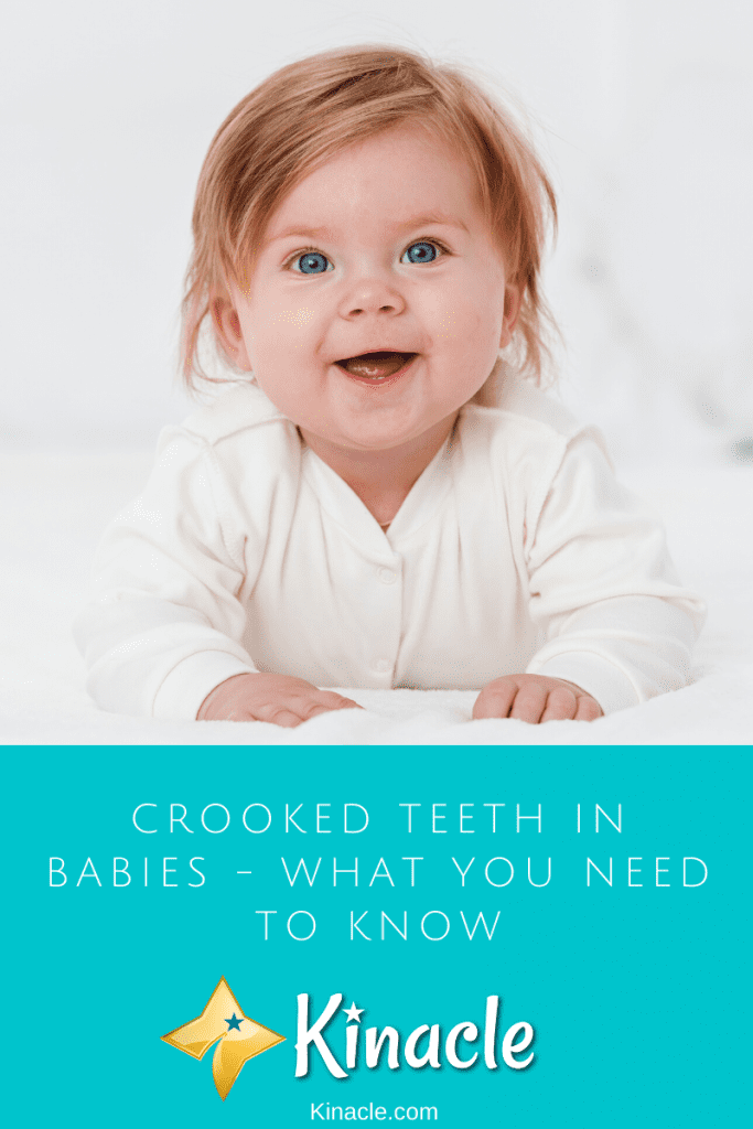 Crooked Teeth In Babies - What You Need To Know